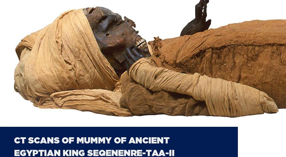 CT scans of mummy of King Seqenenre-Taa-II revealed the circumstances of his death